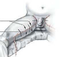 liposuzione interno coscia lifitng interno cosce post obesit 224 e dimagrimento forte