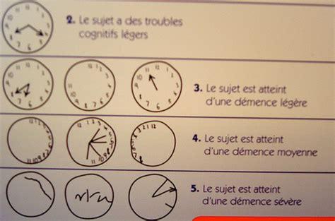 test alzaimer la consultation m 233 moire alzheimertemoignage