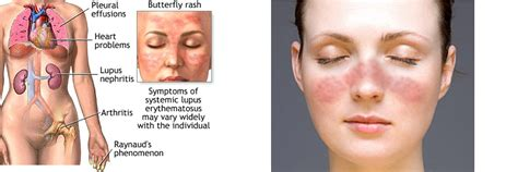 systemic lupus symptoms www pixshark images