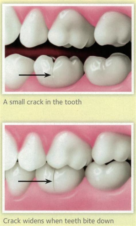 how can you tell if a is how can you tell if a tooth is cracked hillside