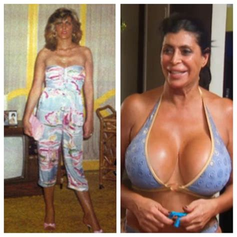 8 Dangers Of Breast Implants by Big Ang Before Big Breast Implants Mob