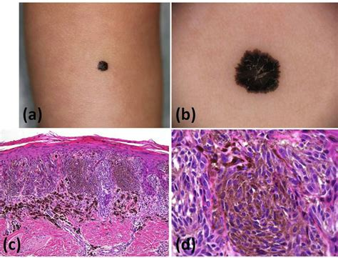 Pigmented Spindle Cell Nevus Of Reed Pathology Outlines by Reed Nevus Pigmented Spindle Cell Nevus In An 11 Month Japanese Infant