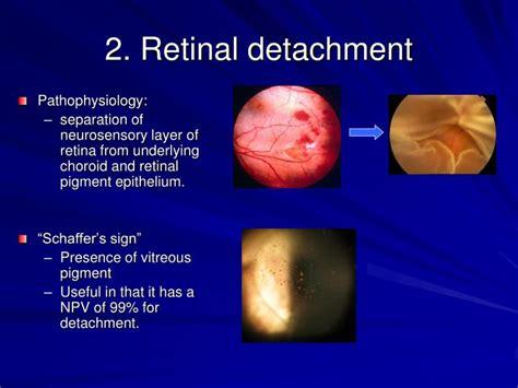 retinal detachment curtain ppt ocular emergencies powerpoint presentation id 1259257