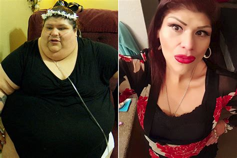 My 600 Lb Life Before And After Surgery | my 600 pound life before and after