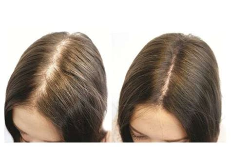 7 facts about biotin and hair growth 7 facts about biotin and hair growth