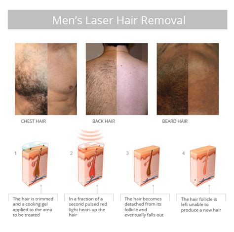 how much does laser hair removal cost on back search results for how much laser hair removal cost