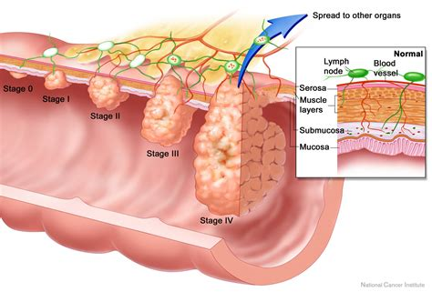 my 2 cents colorectal cancer what s the best way to screen