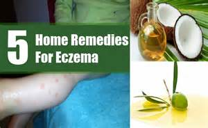 eczema home remedies 5 home remedies for eczema treatments cure for