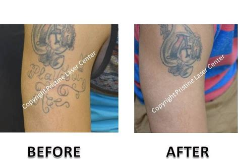 wrist tattoo removal before and after laser removal before and after photos orlando
