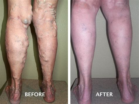 varicose vein treatment gallery avt boise id