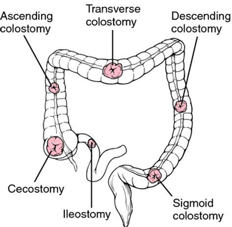 ileostomy diagram image gallery stoma definition