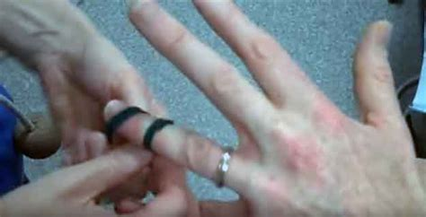 how to get a ring off a swollen finger ring stuck on