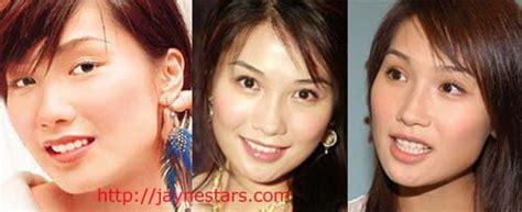 has fiona hughes had plastic surgery actors who may have had double eyelid surgery jaynestars com