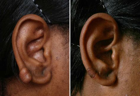 tattoo keloid treatment keloid treatment with cryoshape is now available in