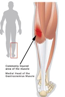 freehand calf muscle skin tear tennis leg medial gastrocnemius syndrome or torn medial