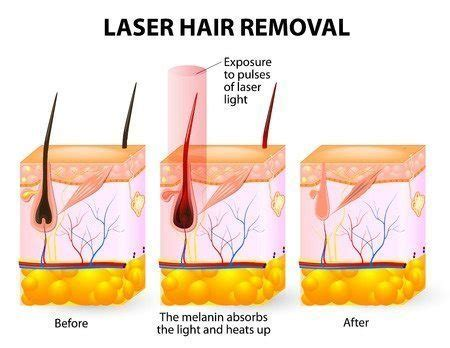 ingrown hair diagram skin ingrown hair treatment razor bumps manchester