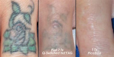 tattoo removal san antonio kerrville san marcos new