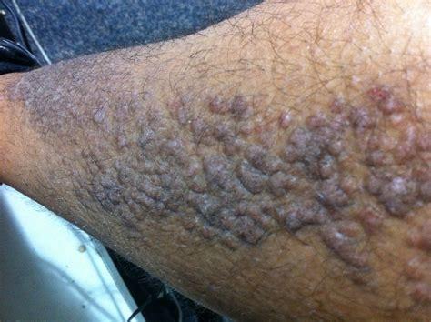 bump on leg i purpleish bumps on my left leg