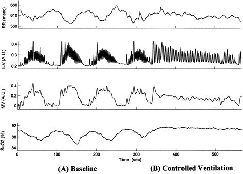 breathing pattern in heart failure abnormal awake respiratory patterns are common in chronic