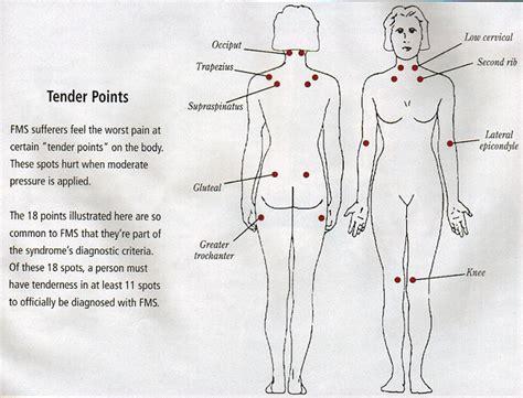 trigger points fibromyalgia diagram fibro trigger points diagram best free home design