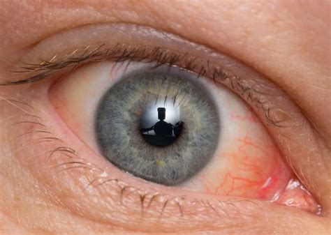eye discharge home remedy home remedies for pink eye treatment