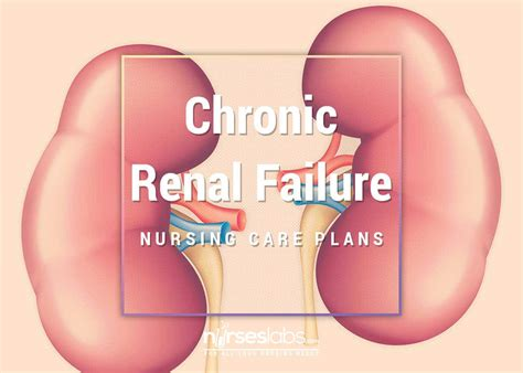 renal failure 5 chronic renal failure nursing care plans nurseslabs