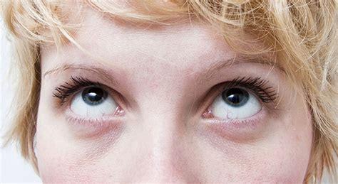 Eye Circle Utk Kantong Mata mata sembab lesu ini 5 produk best untuk penjagaan bawah mata wanista