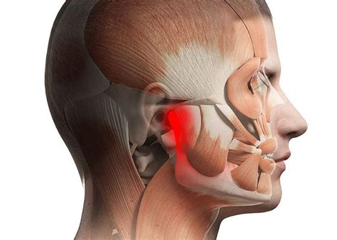 try jaw tmj pain forney mesquite tx