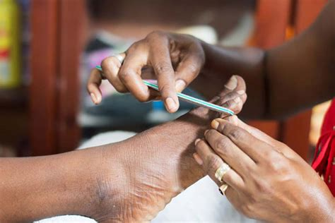 13 Tips On How To Treat In Grown Hair by How To Prevent Treat In Grown Nails Uganda 7