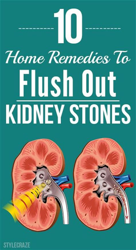 How To Detox Kidney Stones by Best 25 Kidney Stones Ideas On Kidney