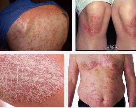 Obat Gatal Eksim Dermatitis cara mengobati gatal eksim herbaldenatureindonesia
