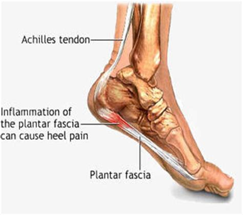 How Does Planters Fasciitis Last by Heel Prevention Causes And Treatment For Heel