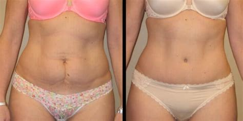 plastic surgery c section scar tummy tuck case 29 maier plastic surgery