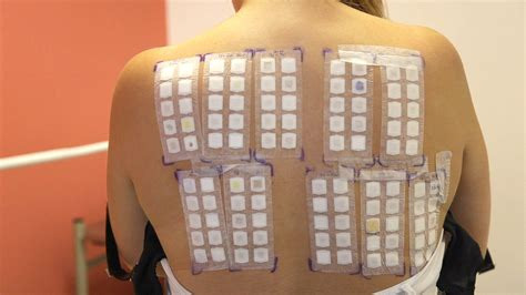 patch test skin patch testing pictures photos