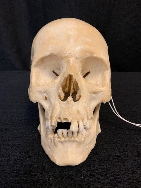 normal human skulls