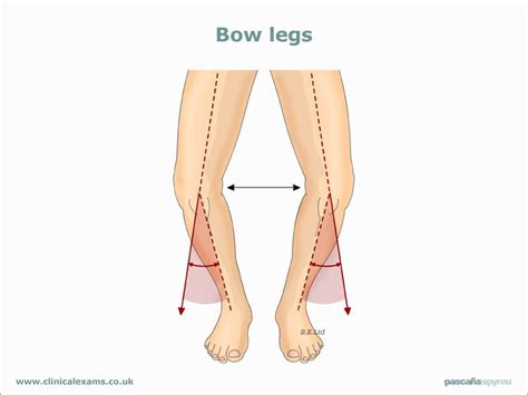 bow legged study quide aa the lower extremity the knee studyblue