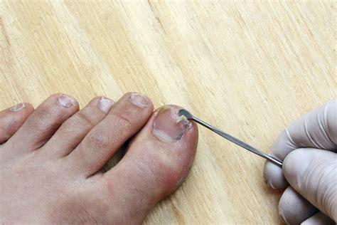 split nail bed split nail bed treatment best nails 2018