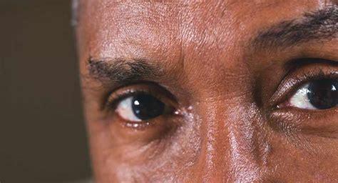 lights in eye stroke eye stroke symptoms causes and more