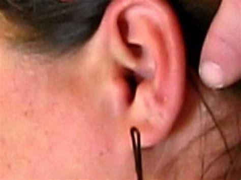 MOMS EAR EXPLODES! - YouTube