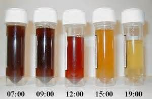 cola colored urine urine could indicate a liver problem living with