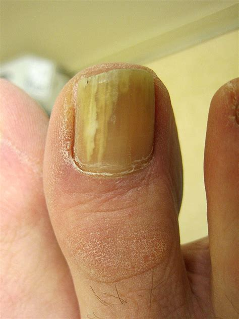 Toe Nail Care by Toenail Fungus Infection