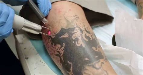 how to remove the permanent tattoo make ur health better how to remove permanently at
