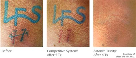 tattoo removal cost in chennai 100 natural tattoo removal may 2014 21 best tattoo