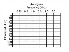 related keywords amp suggestions for sample audiograms