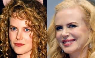 Celebrity nicole kidman plastic surgery mistake
