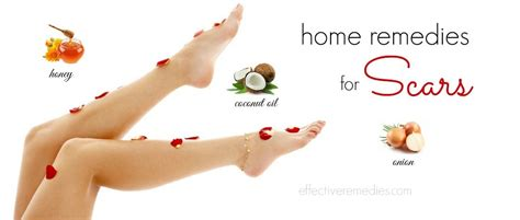 26 home remedies for scars removal on legs other