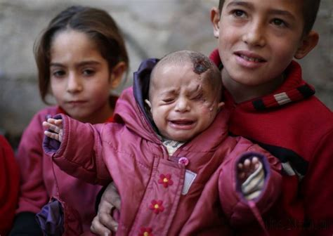 syrian babys photo inspires people  cover  eye