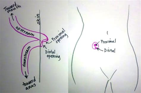 ileostomy diagram fighting for it december 2012