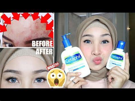Pelembab Drugstore Untuk Kulit Sensitif top 3 moisturizers for acne prone skin bahasa