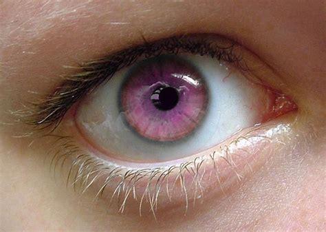 pink eye color the strange eye by freoment on deviantart